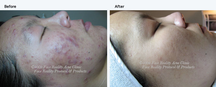 inflamed_acne_hyperpigmentation_small1
